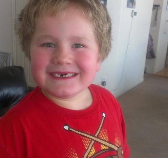 Losing all his teeth!!!
